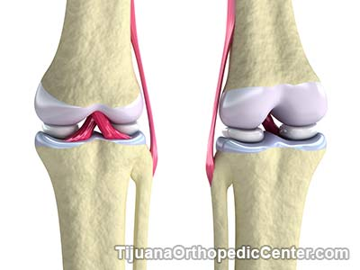Meniscus Tear Repair