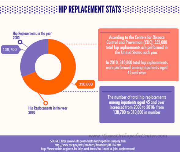 Hip Replacement Statistics