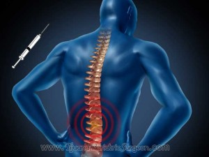 Ozone Discolysis for Back Pain