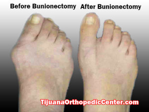 Bunionectomy Before and After in Mexico - Tijuana