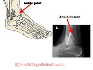 Ankle Fusion in Tijuana - Mexico