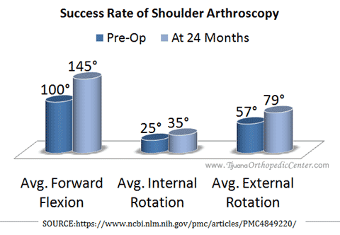 Shoulder Arthroscopy Success Rate
